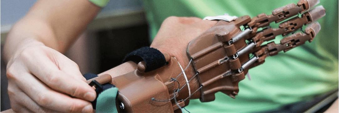 3D打印的义手