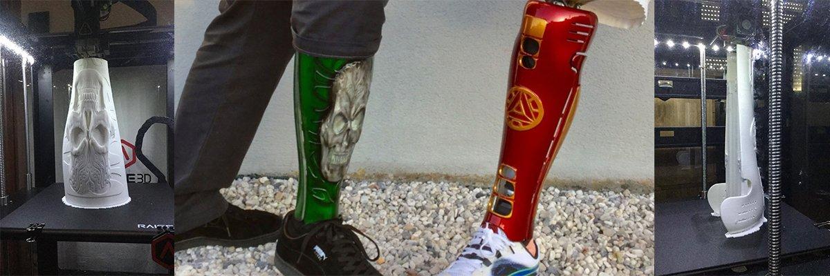 3D打印的义腿